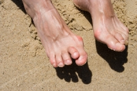 Everything to Know About Hammertoe