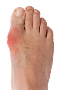 How Do I Know if I Have Gout?